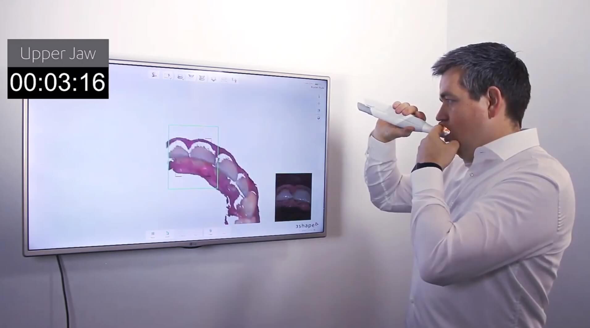 Принцип работы интраоральных сканеров